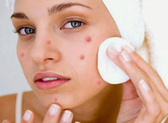 mascarillas-para-la-cara-con-acné1