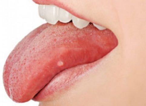 ¿por qué la lengua es el musculo más fuerte del cuerpo